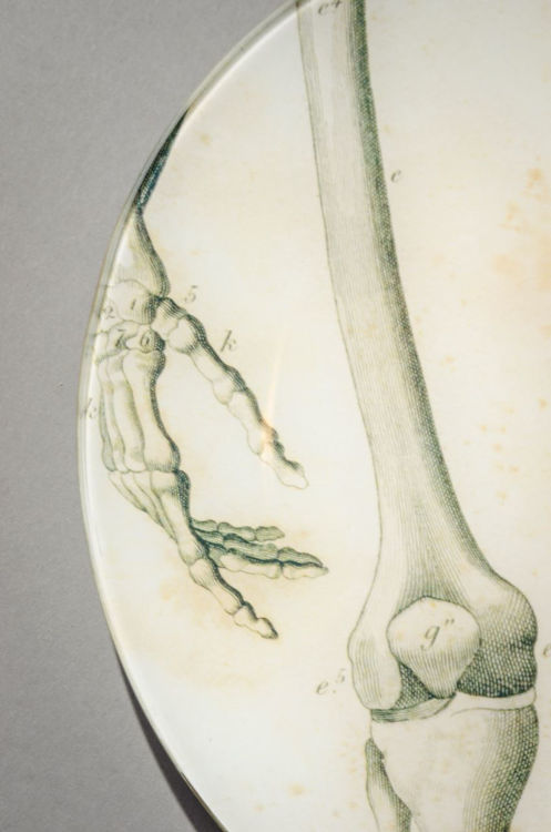 Picture of Knees of Skeleton